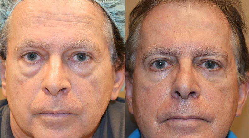 Journalist Todd Etshman shares the before and after photos of his eye surgery. Photo provided.
